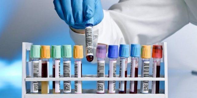 Exames de rotina e os laboratórios em Juiz de Fora que podem atender você