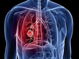 Combate à Tuberculose: você conhece a doença?